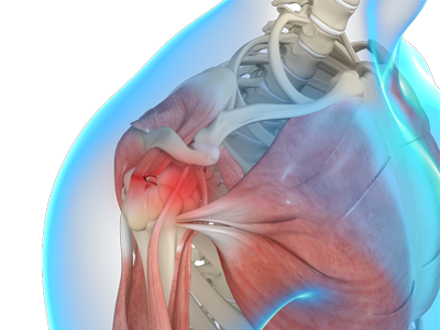 Rotator Cuff Tears Boise Trauma Treatment Boise Eagle Id